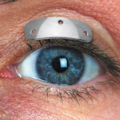 Prothèses palpébrales profilées fines
