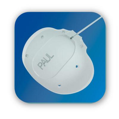 Implant à glaucome de PAUL®